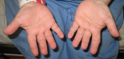 langer-giedion_syndromehands1